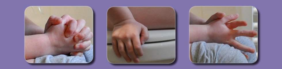 1e Landelijke scholingsdag ontlastingsproblemen bij kinderen